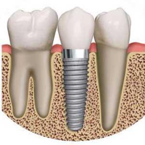dental-implant-drawing