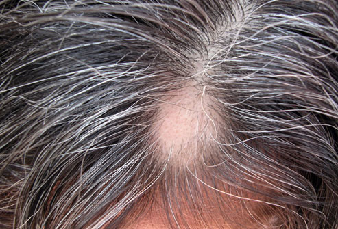 photolibrary_rf_photo_of_alopecia_areata